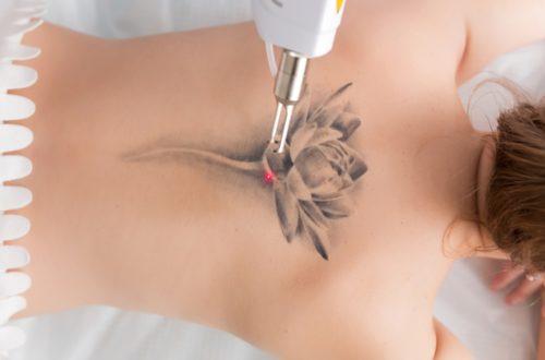 Laser-Tatto-Removal-500x330.jpg