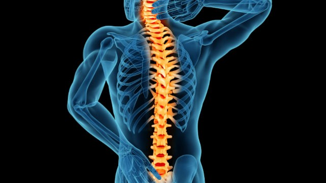Treating_Spinal_Stenosis-640x360.jpg