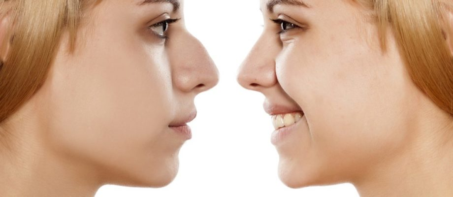 Rhinoplasty surgery – A perfect solution to get an appealing nose