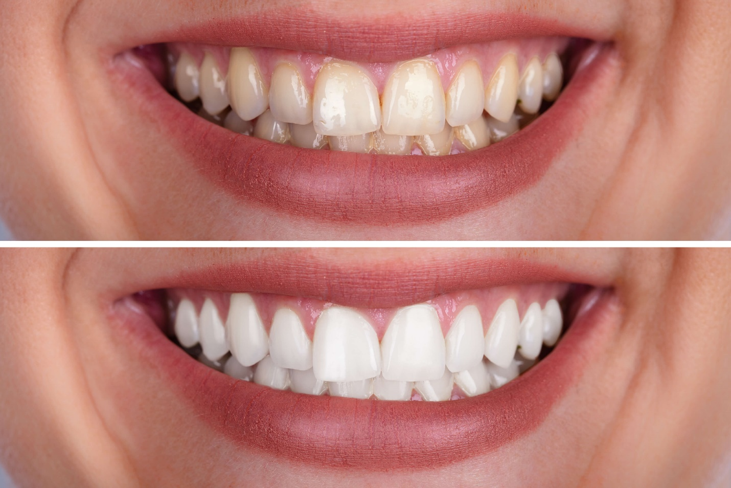 Close-up of a person's teeth  Description automatically generated