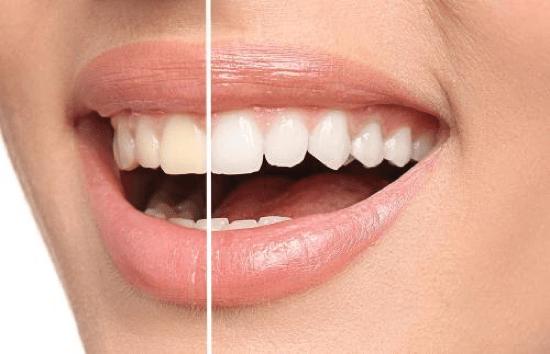 Home Teeth Whitening Kit: Everything You Need to Know | Oaks Dental Korea